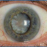 Причины заболевания катаракты у человека