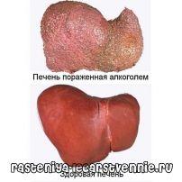 Признаки алкогольного цирроза печени