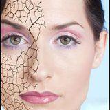 Проблема сухости кожи человека
