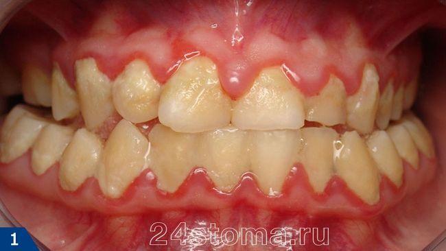 Профессиональная чистка зубов: Аir Flow, ультразвук