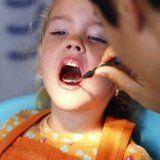 Профилактика кариеса на постоянных зубах у детей