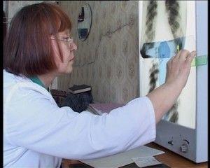 Профилактика туберкулёза у детей