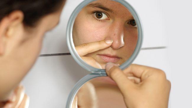 На переносице, носу и лбу прыщики могут образовываться в результате употребления чрезмерного количества сладких продуктов