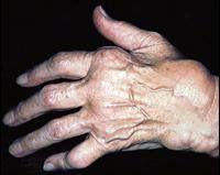 Ревматоидный артрит симптомы и лечение
