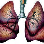 Саркоидоз внутригрудных лимфатических узлов