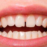 Щель между передними зубами у человека