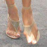 Guzki na nogach w okolicy kciuka