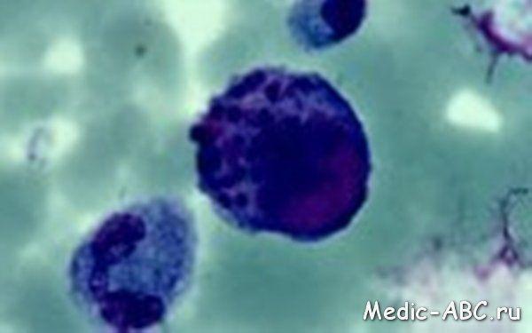 Симптомы цитомегаловирус