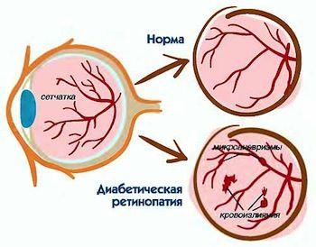 Симптомы и лечение диабетической ретинопатии