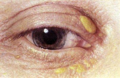 Симптомы и причины ксантелазмы век