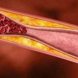 Снижение холестерина народными способами