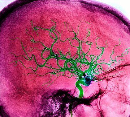 Современное лечение острого нарушения мозгового кровообращения