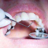 Metode moderne de stomatologie