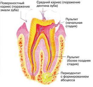 Стадии кариеса, или Почему болят зубы