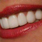 Тщательное отбеливание зубов у человека