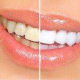 Укрепление эмали зубов человека