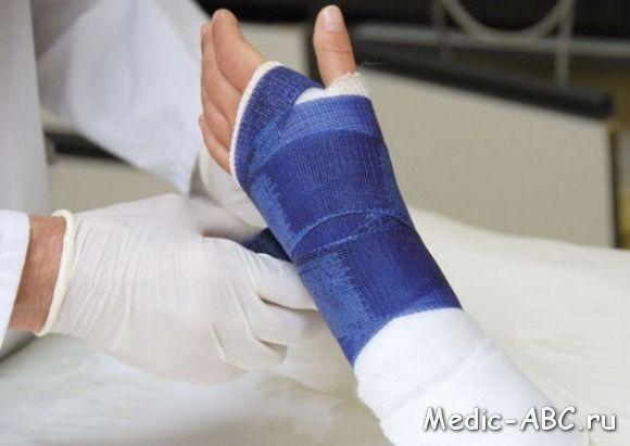 Упражнения для руки после перелома