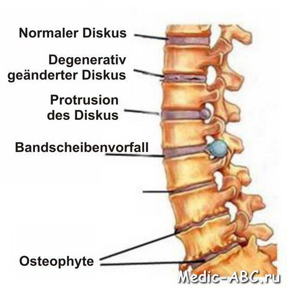 Tipuri de osteoartrita și cum să-l trateze