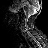 Влияние заболевания позвоночника на головной мозг