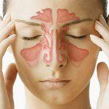 Внутричерепные осложнения риногенной инфекции