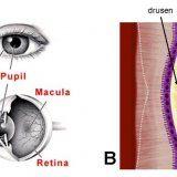 Восстановится ли зрение после кровоизлияния в сетчатку глаза