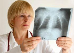 ВОЗ предупреждает о возвращении туберкулеза