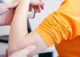 Проявите на мускулна слабост