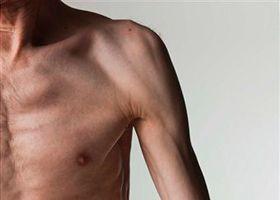 Słabość mięśni osoby w podeszłym wieku