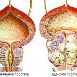 Заболевание аденома предстательной железы