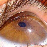 Заболевания наружной сетчатки глаза