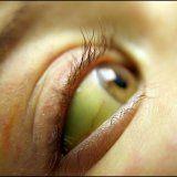 Желтые белки глаз причины